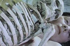 Marina Abramovic, nu avec squelette, 2005- musée des beaux arts de Nantes - SL